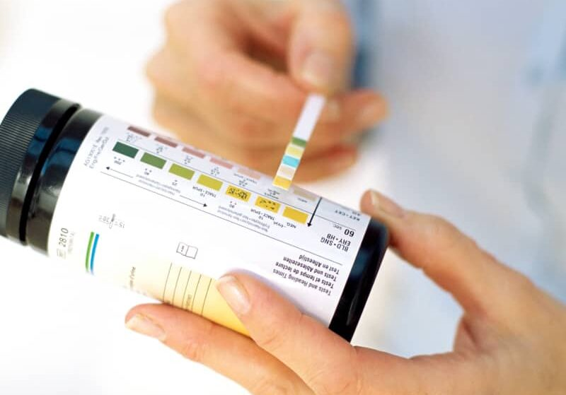 How To Use Keto Diet Testing Strips To Measure Ketosis
